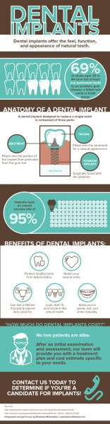 Dental Implants Chandler