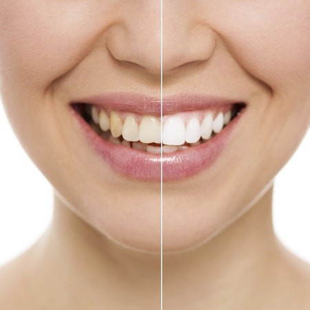 Before and after split image of a teeth whitening patient in Chandler