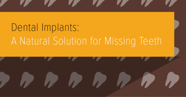 Dental Implants: A Natural Solution for Missing Teeth