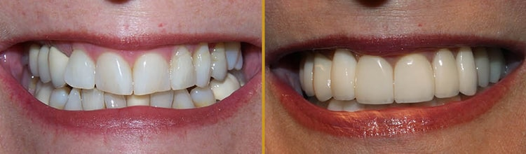 A before and after of full mouth rehabilitation in Chandler, AZ