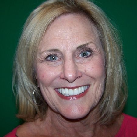 A patient who had full mouth rehabilitation in Chandler, AZ