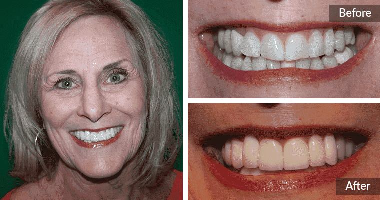 Before and after of a full mouth reconstruction patient