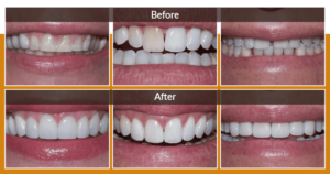 3 before and after porcelain veneers cases of Dr. Walker's.